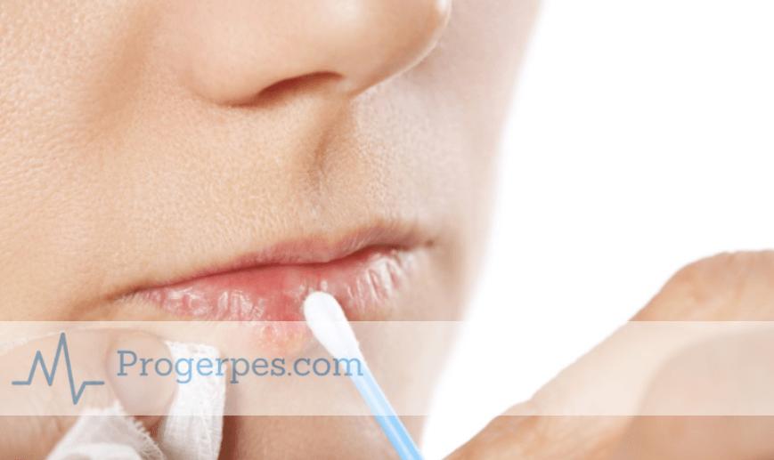 Чем прижечь простуду на губе