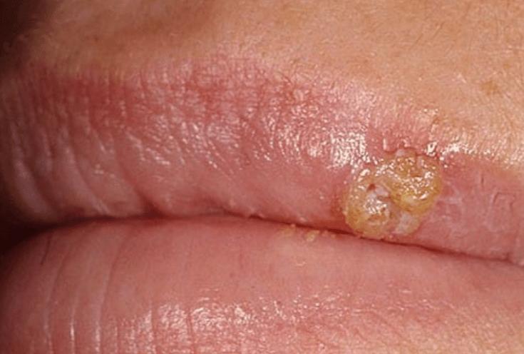 Герпес на губах симптомы у женщин