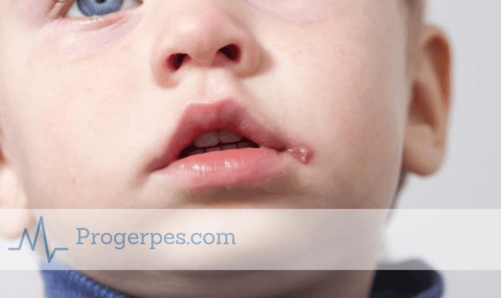 герпес на губах у детей лечение
