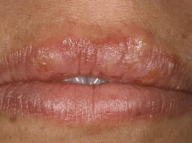 Простуда на губе симптомы
