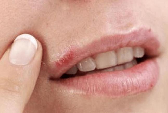 Симптомы герпеса на губах