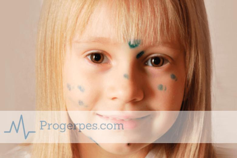 первые симптомы ветрянки у детей 3 лет