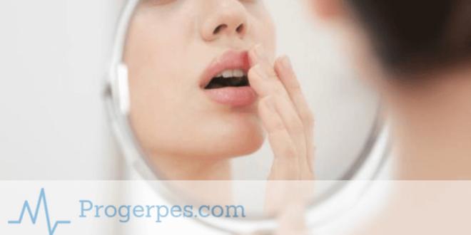 герпес инкубационный период на губах