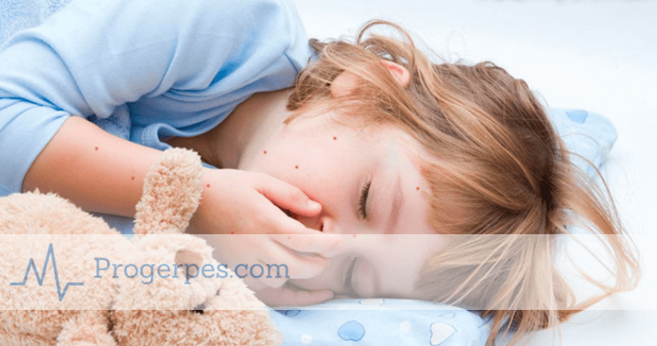 Сколько держится температура при ветрянке у детей