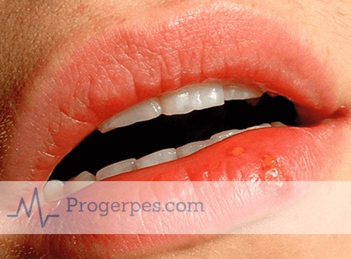 простуда на губах в домашних условиях лечение