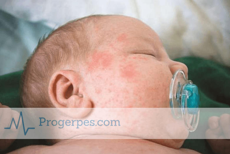 Вирус коксаки симптомы и лечение инкубационный период