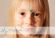 Ветряная оспа у детей осложнения — ? как не допустить