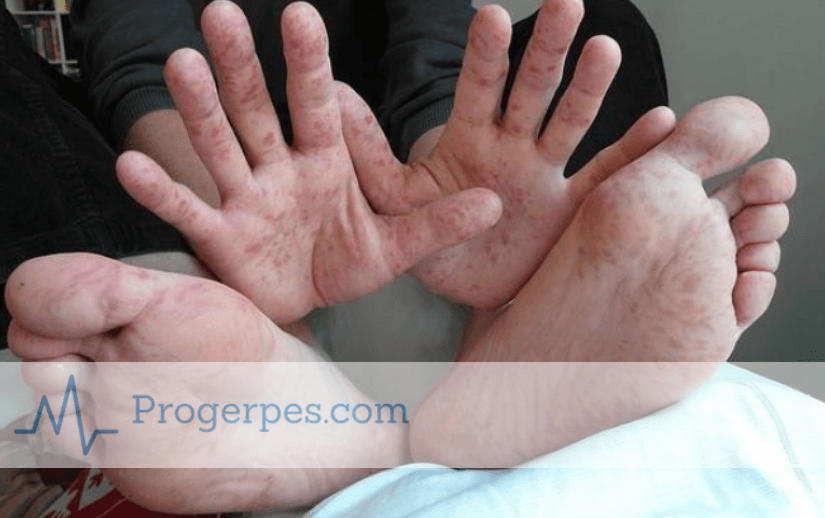 Инкубационный период вируса коксаки у взрослых