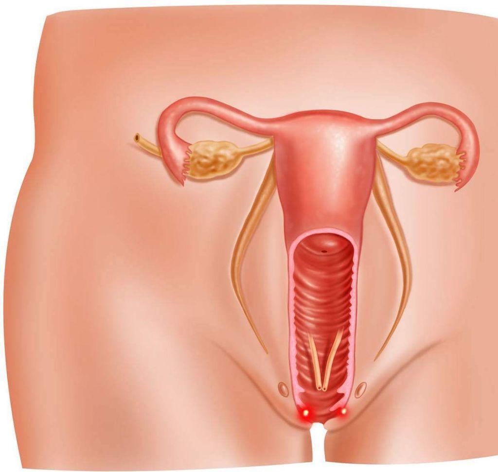 Проявление хронической формы вагинита и ее лечение