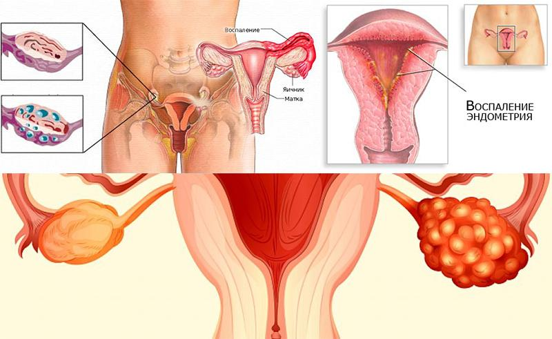 Что такое воспаление вульвы и как его лечить