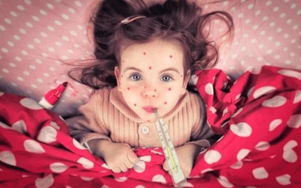 Почему ветряной оспой лучше переболеть в детском возрасте?