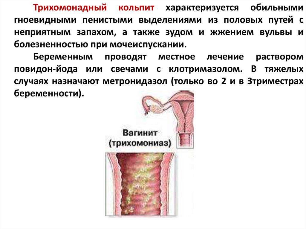 Симптомы и лечение атрофического вульвовагинита