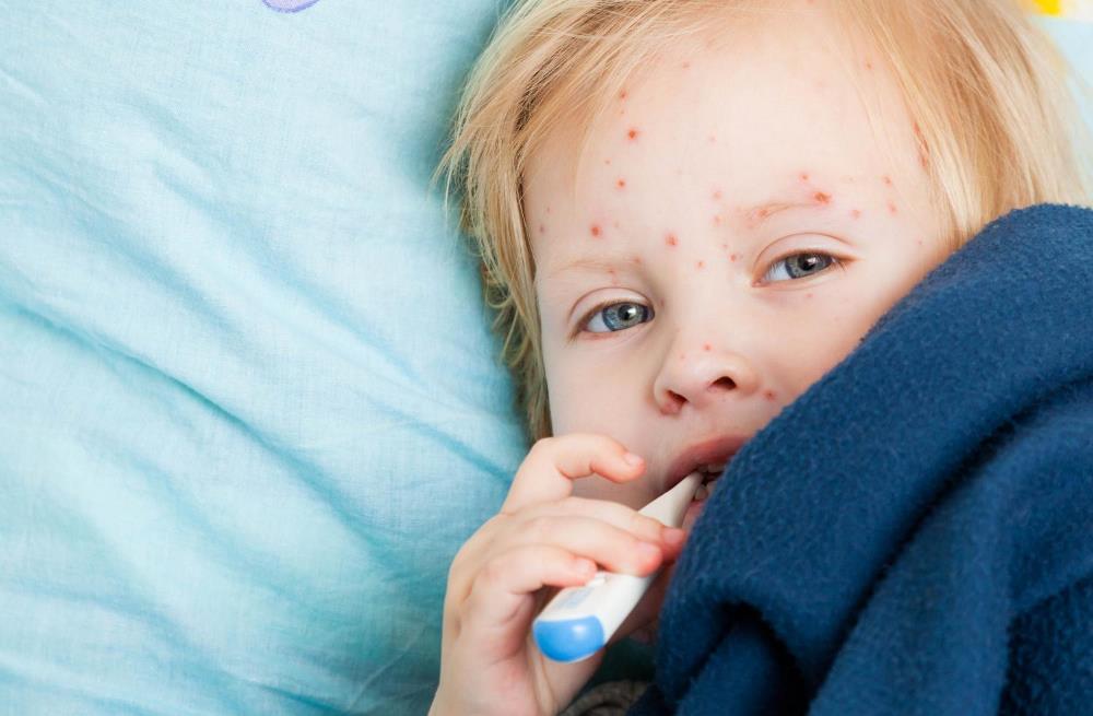 Длительность заболевания ветряной оспой у детей