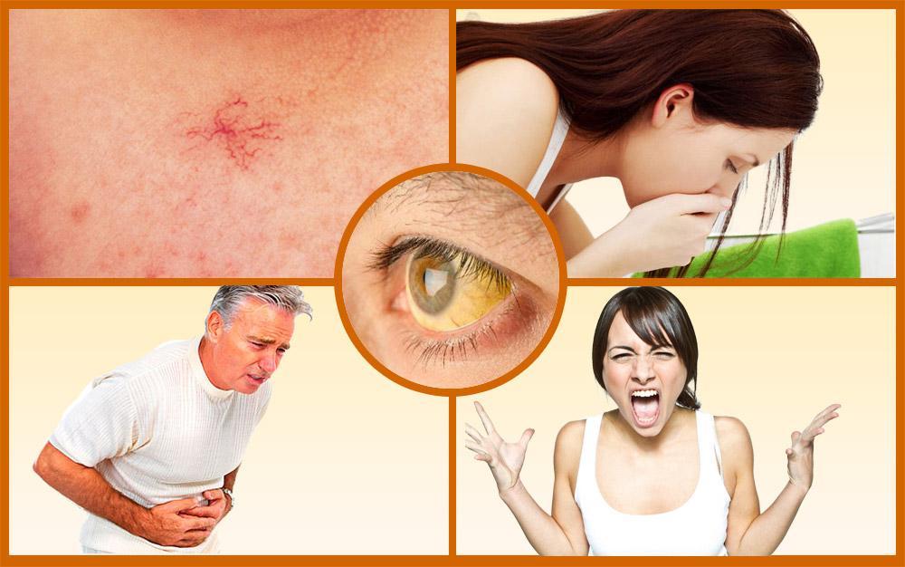 Возможные последствия от гепатита В