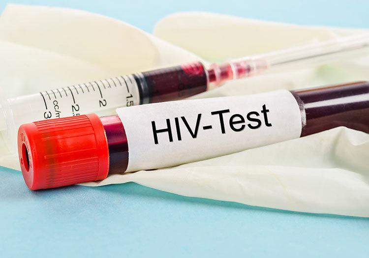 Причины сомнительного результата анализа на гепатит С