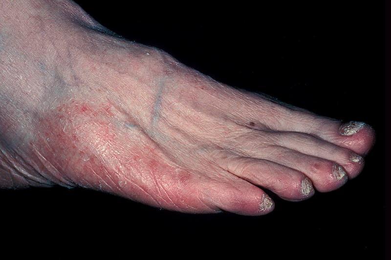 Эпидермофитии стоп: признаки, симптомы и методы лечения