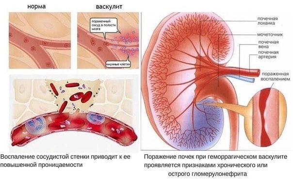 Васкулит и криоглобулинемия при гепатите С: лечение