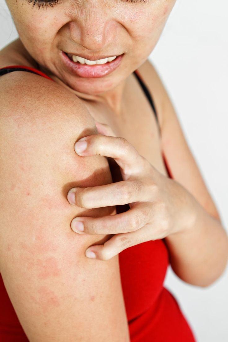 Сыпь и кожный зуд при гепатите