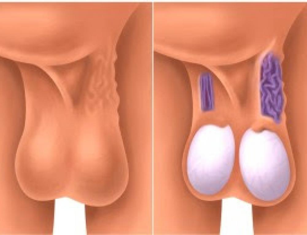 Варикоцеле у мужчин: проявление и лечение