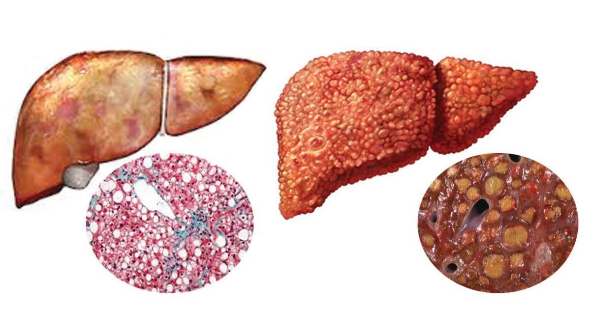 Чем опасно для человека носительство гепатита С