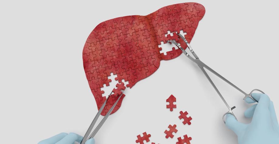 Признаки гепатита В и особенности его лечения