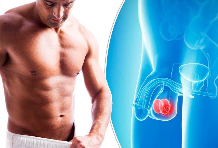 Рак яичка у мужчин: клинические проявления и причины