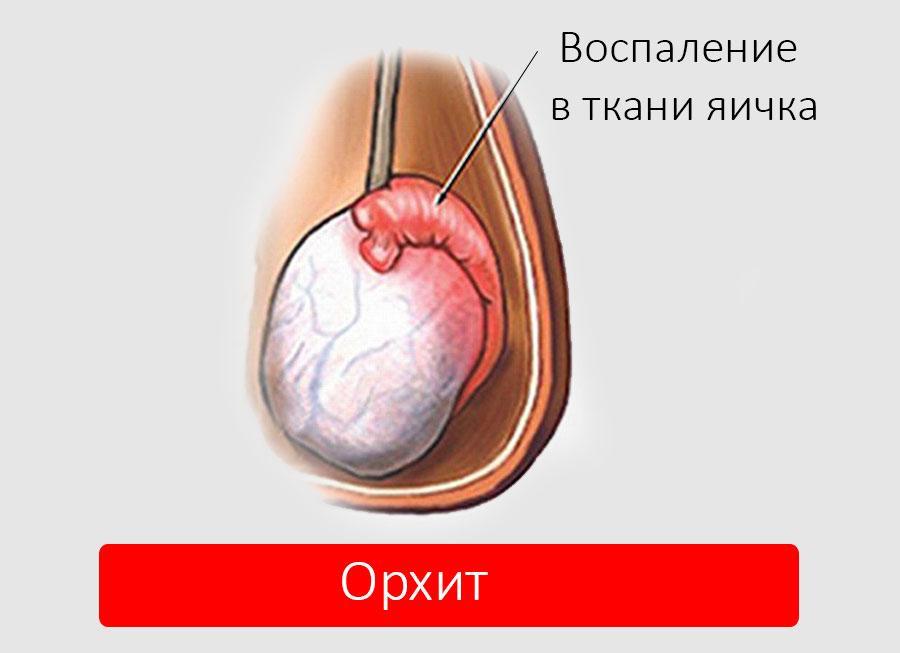 Орхит: признаки его развития и способы лечения