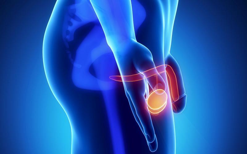 Воспаление семенных пузырьков у мужчин: методы лечения