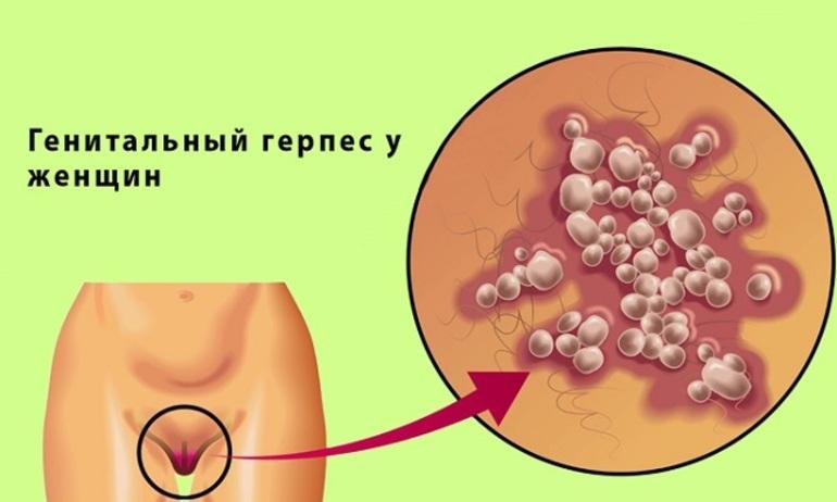Симптомы и методы лечения герпеса у женщин