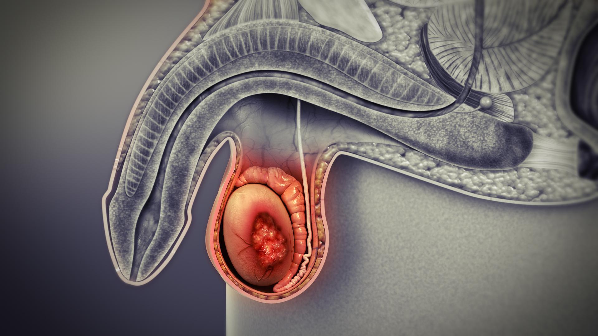 Опухшее яичко у мужчин: причины и лечение