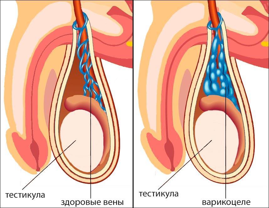Целесообразность операции при варикоцеле у подростков