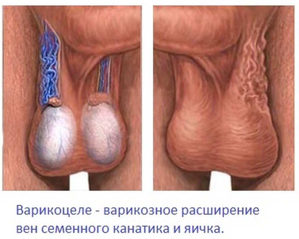Варикоцеле: ход проведения операции Иваниссевича